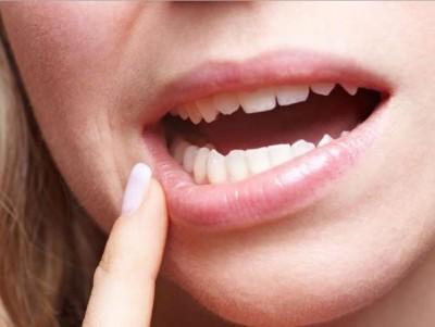 Aparición de llagas en la boca