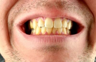 Factores que intervienen en el color de los dientes