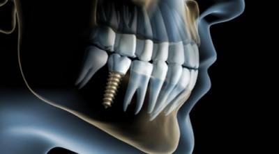Sonrisa perfecta con los implantes dentales